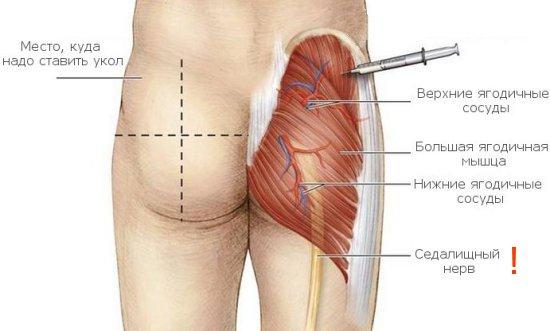 Как правильно сделать укол в ногу внутримышечно