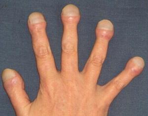 Альвеолиты легких
