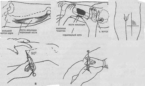 укол в мышцу бедра